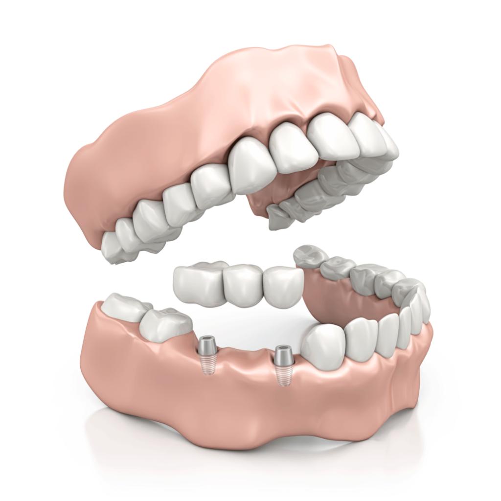 Gesichtschirurgie Kieferchirurgie Praxisklinik Zahngestell Gebiss